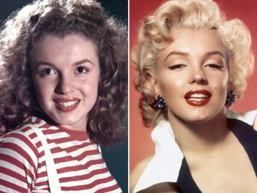 marilyn-monroe-chin-implant-before-after